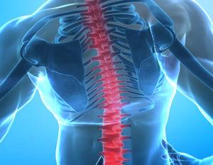 Image depicting back pain