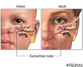 ear infections and chiropractic