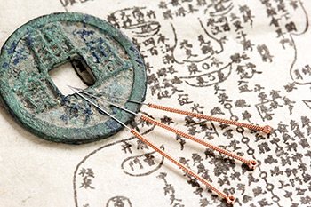 Chinese Acupunture