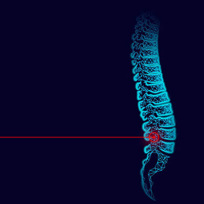 Laser Therapy Spine