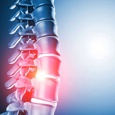 Spinal Reengineering